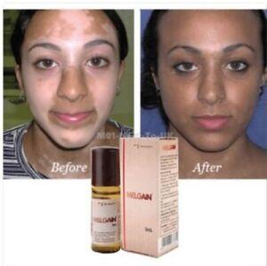 Melgain Lotion for Vitiligo White Spots Patches 5ml Free Shipping