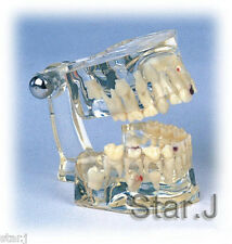 NEW Dental Transparent Demonstration Child Kid Teeth Model Typodont