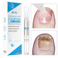 3ml Anti Fungal Treatment Nail Pen Onychomycosis Paronychia Infection Herbal Toe