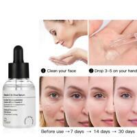 50ml Hyaluronic Acid Serum Moisturizing Essence Shrink Pore Face Whiten