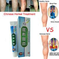 Medical Varicose Veins Treatment Leg Acid Bilges Cream Chinese Medicine