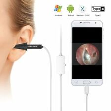 Teslong Mini NTE100B USB Digital Otoscope Inspection Camera for Mac and PC