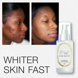 PURE WHITE WHITENING FACE SERUM FAIRER LIGHTER SKIN FADES ACNE SCARS MELASMA