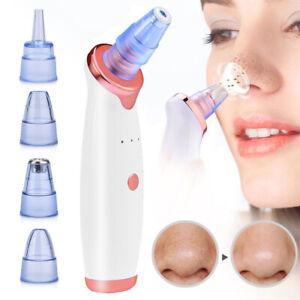 Soin Visage Peau Massager Point Noir Aspirateur acné de Nettoyage Électrique