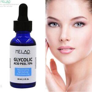 GLYCOLIC Acid Peel 70% Rejuvenating Age-Defying, Pore Reducing - Face Serum
