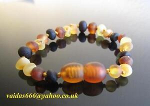 Baltic Amber Bracelet/Anklet - Unpolished Mix, Knotted Beads, 14-19 cm + BESPOKE