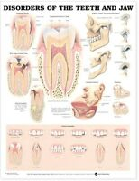DISORDERS OF THE TEETH AND JAW POSTER (66x51cm) ANATOMICAL CHART NEW EDUCATIONAL