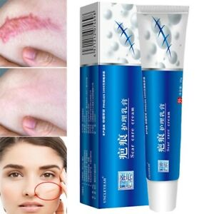 Acne Scar Removal Cream Pimples Stretch Marks Face Gel Remove Acne Skin Care