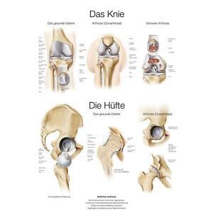 Erler-Zimmer Anatomische Lehrtafel Poster Das Knie / Die Hüfte Größe wählbar