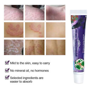 Antibacterial Herbal Crem Skin Problems Treatment Psoriasis Dermatitis Eczema