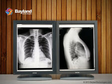 Pair (x2) Barco MFGD-3420 3MP Coronis Grayscale Medical LCD Monitors