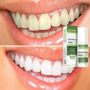 Teeth Whitening Toothpaste,Foam Toothpaste,Remove Tooth Plaque for Oral Cleaning