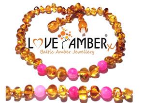 Adult Honeysuckle Polished Honey Baltic Amber Pink Agate Anklet Love Amber x UK