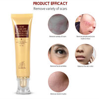 Removal Acne Face Cream Skin Care Effective Repair Face Care Spots Treatment 30g