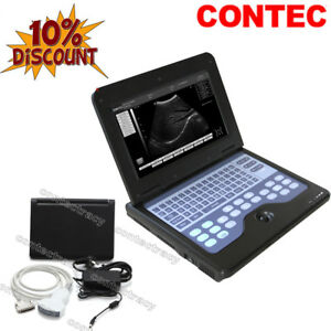 CE Portable B-Ultrasound Scanner with 3.5mhz Convex Probe for huamn use,laptop
