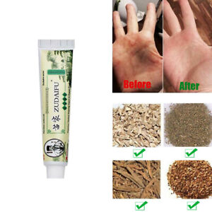 Chinese Herbal Antibacterial Ointment Anti-Intch  Deep Repair Cream