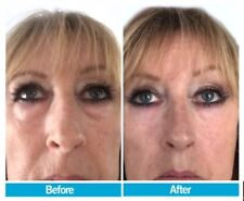 INSTANT Wrinkle Reduction - x5 Bottles For $199! RRP $599 save $310.. It Works!