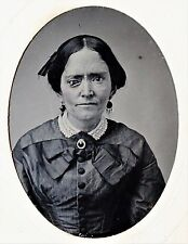 RARE Tintype Photo  1865 Weird Medical Eye Disease Freak Deformity Woman Unusual