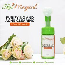 Skin Magical Purifying and Acne Foam Wash (100ml) And Pore Minimiser Gel