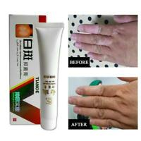 Disease Pigment Melanin Promoting Skin Vitiligo Leukoplakia Disease Ointment