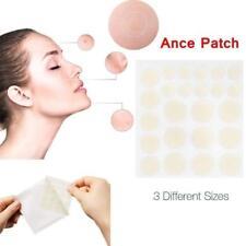 24Pcs Beauty Acne Acne Patch Set Skin Tag Remover Pimple Master Patch Treatment