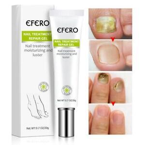 EFERO Nagel Reparatur Essenz Entfernen Onychomykose nagel reparatur creme