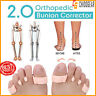 HappyFeet Orthopedic Bunion Corrector 2.0 - Free Shipping