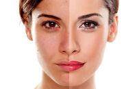 Hyaluronic Acid Serum Wrinkle HA Matrixyl 3000 Vitamin C Anti Aging Plumping