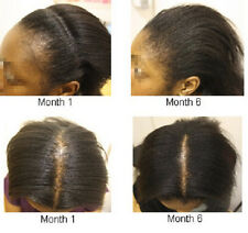 REJUVENATE POTENT JAMAICAN BLACK CASTOR OIL for Traction Alopecia 8oz