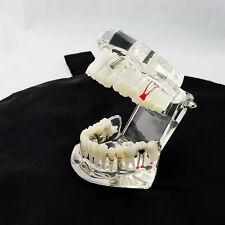 weiße Dental Implant Krankheit Zähne Modell mit Restoration & Bridge Tooth