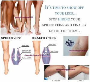 LOWEST PRICE ANTI SPIDER VEIN CREAM Remove ugly Spider Thread Veins Pain Free !