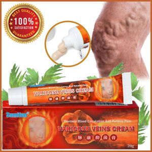 ✅ Varicose Veins Miracle Ointment Relief Pain Cream Angiitis Phlebitis Spider ✅