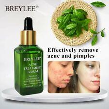 Anti acne tea tree olio trattamento viso siero rimozione i punti neri e brufoli