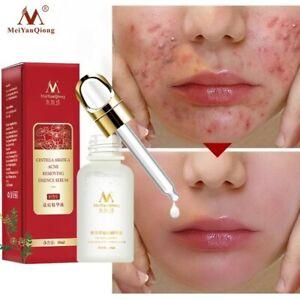 Acne Treatment Face Serum Centella Asiatica Oil Control Shrink Pores Scar Essenc
