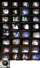 16 mm Film Gesundheit:Krebs Real und Trickfilm Labor DNS Forschun.Antique Movie