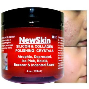 Acne Scars SILICON & COLLAGEN Skin Polishing Crystals Indented Rolling ALKAVITA