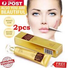 2PCS 30g TCM SCAR AND ACNE MARK REMOVAL GEL OINTMENT (LanBeNa) Acne Scar Cream