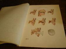 Planches/gravures science médecine Maladie de l'oreille an 1920 (ORL)
