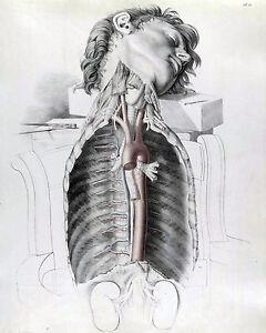 Vintage Medical Anatomy Of Human Arteries Illustration Real Canvas Art Print New