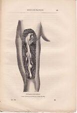 Ancienne gravure médicale 86 - Médecine pratique - Névromes du nerf sciatique