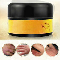 Moisturizing Anti-Drying Oil Control Horse Oil Cream Whitening/Anti-wrinkle/Scar