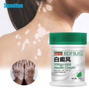 White Spot Cream Antibacterial Pigment Vitiligo Treatment Leukoplakia Relief 30g