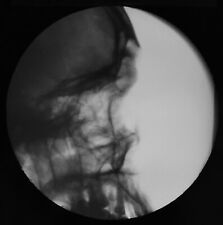 Magic Lantern Slide XRAY COMPOUND FRACTURE FRONTAL SINUS NO2 C1947 MEDICAL PHOTO