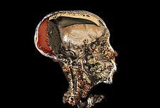 Encadrée imprimer-x-ray of king tut's des restes momifiés (photo egypte égyptien)