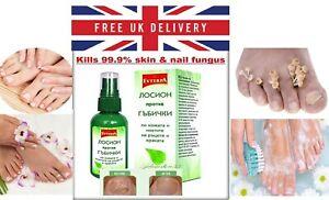 FUNGAL NAIL TREATMENT Lotion KILLS 99.9% of Nail Fungus feet toes hands 50ml.