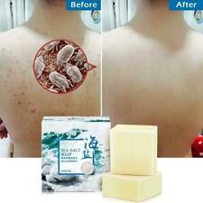 100g Natural Goats Milk Soap Bar Acne Treatment Sea Salt Nice Soap Face N9O5