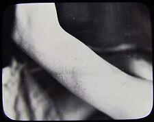 Glass Magic Lantern Slide HUMAN ARM WITH A RASH ? C1890 PHOTO MEDICAL