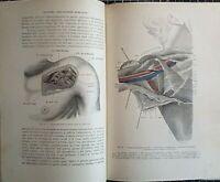 Francesco Occhini - TRATTATO DI MEDICINA OPERATORIA - 2 vol. Vallardi 1893
