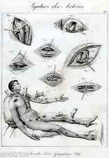 ANGIOLOGIA:Chirurgia Vascolare:LEGATURA DELLE ARTERIE.1.Medicina.Litografia.1841