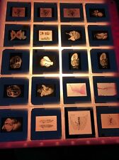 Vintage Cardiac Slides Lot Of 20 Dissection Medical Heart Oddities
